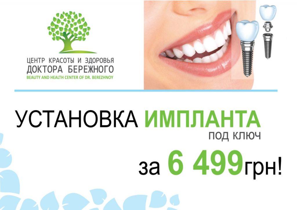 Установка импланта всего за 6499 грн!